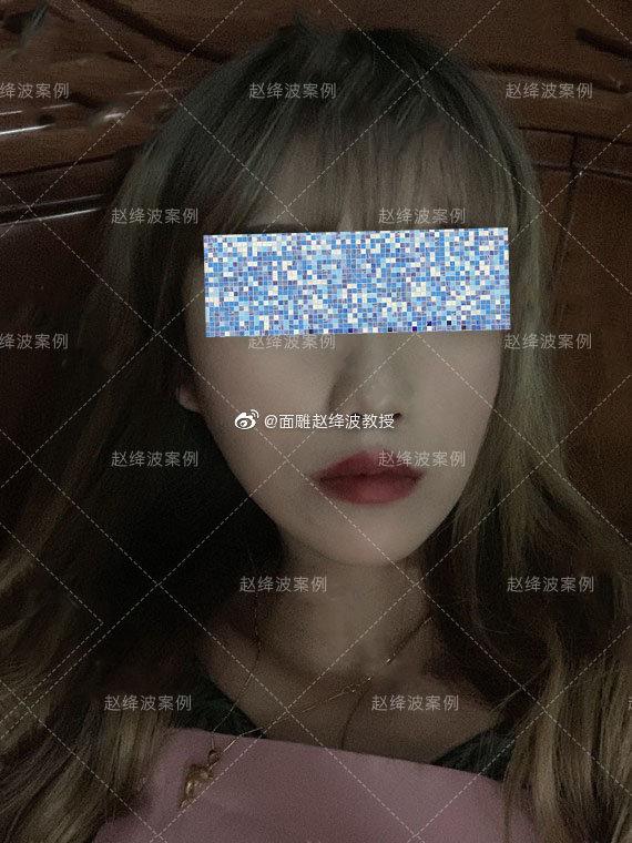 赵绛波改脸型案例