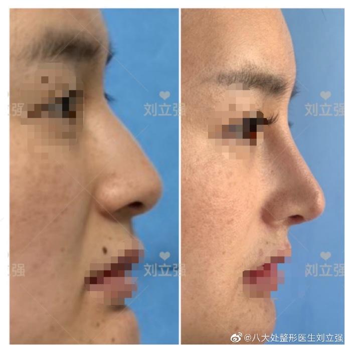 刘立强驼峰鼻矫正案例