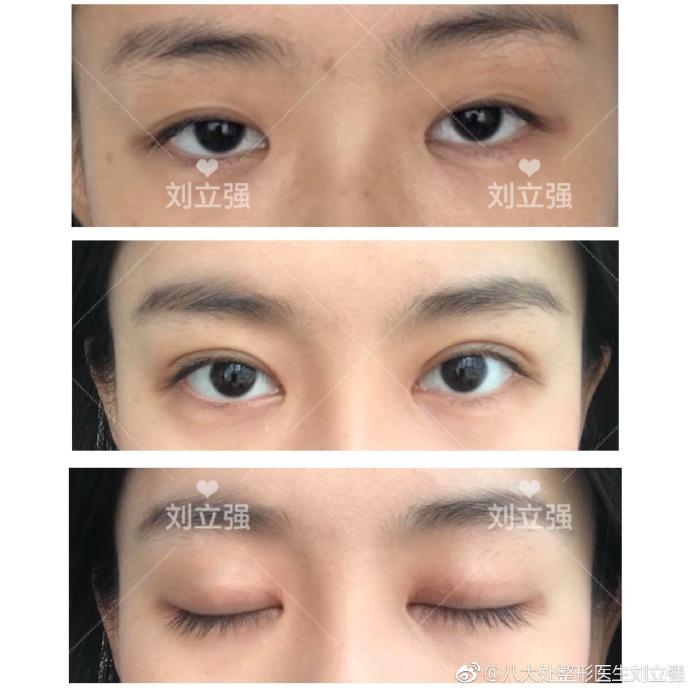 刘立强双眼皮案例