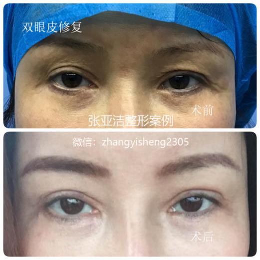 张亚洁双眼皮修复案例