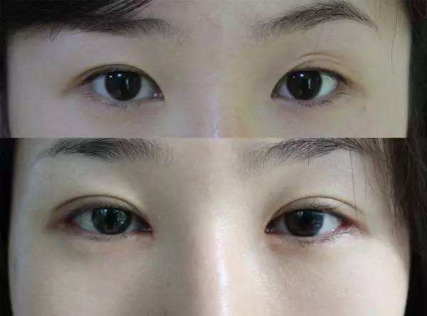 张恒术双眼皮案例