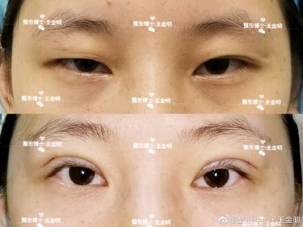 王金明双眼皮案例