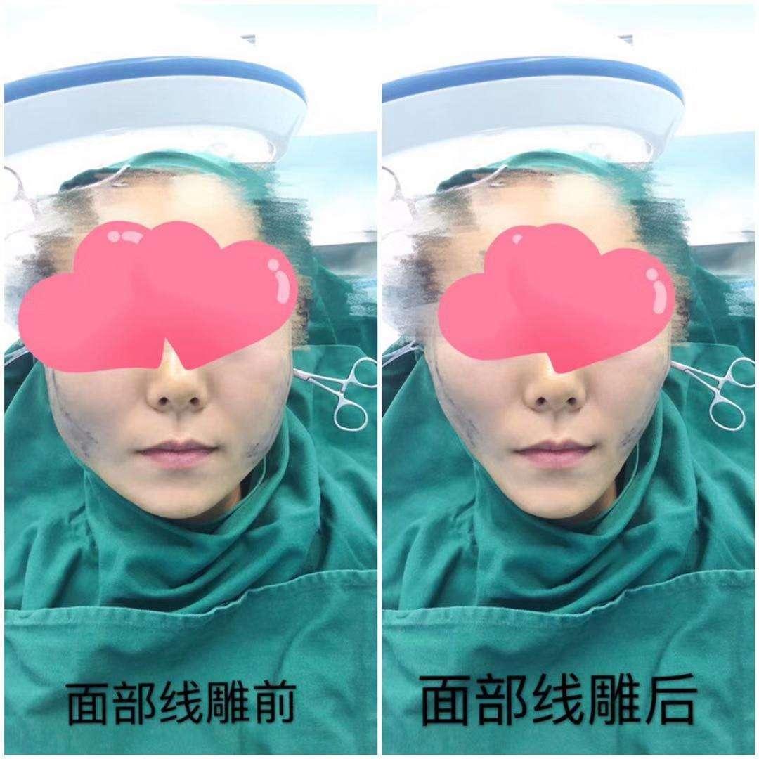 上海九院面部年轻化面部提升除皱专家排名