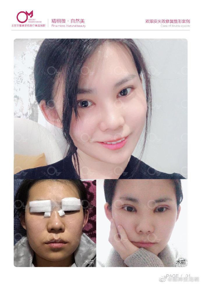 张海明双眼皮修复案例