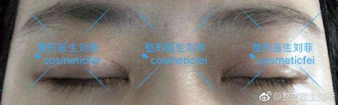 刘菲割双眼皮案例