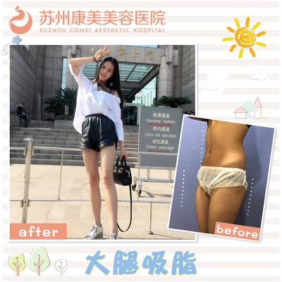 刘道功大腿吸脂案例