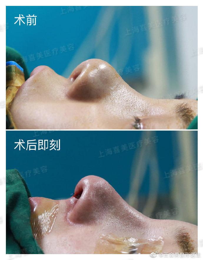王会勇全肋鼻修复案例