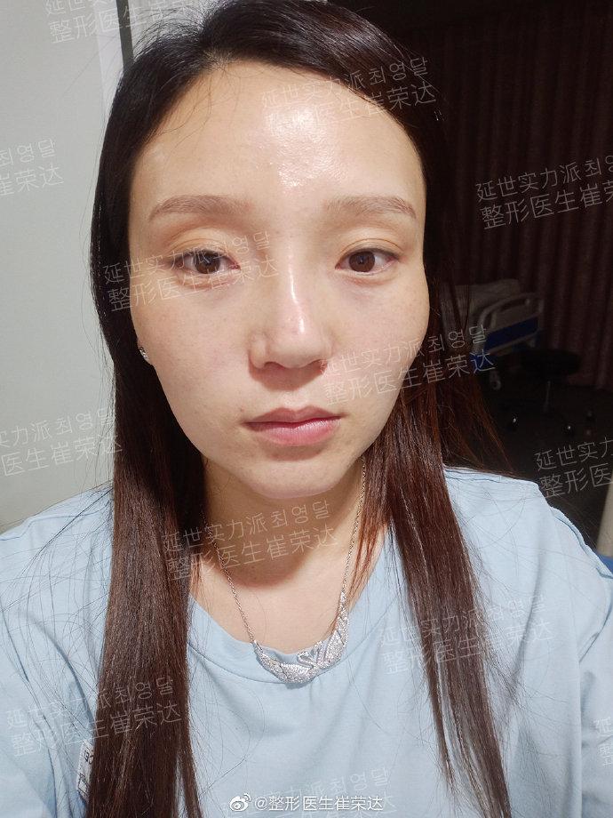崔荣达下颌角颧骨案例