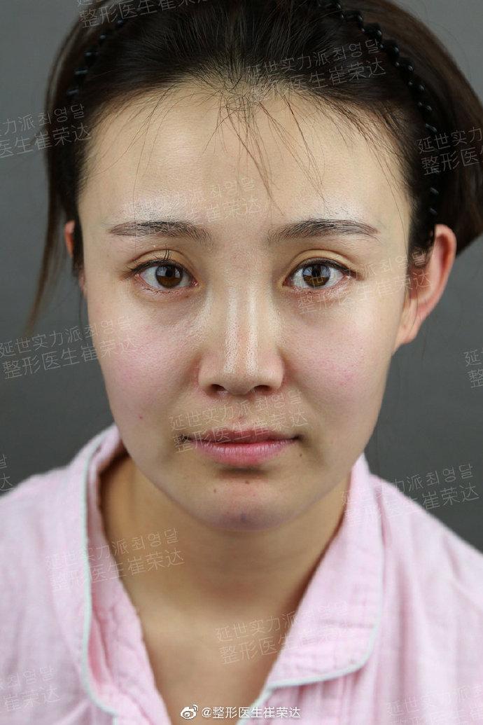 崔荣达面部轮廓案例