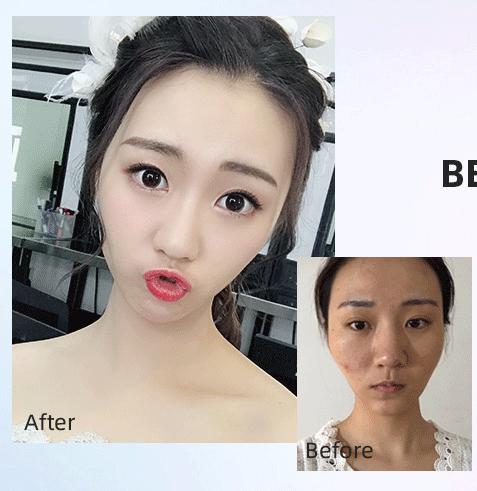刘先超颌面案例