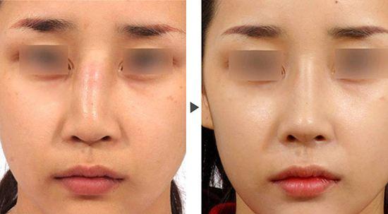 国内最好的鼻子修复专家有哪些?国内知名鼻修复专家排名