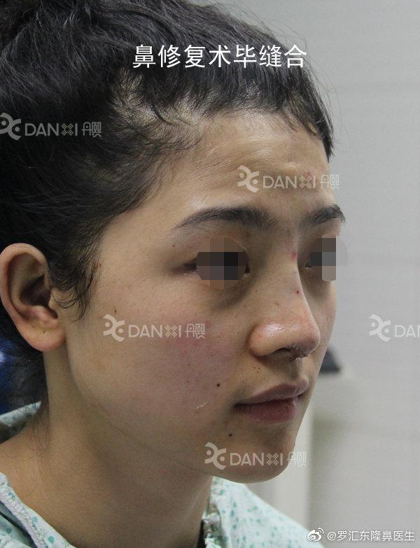 罗汇东鼻修复案例