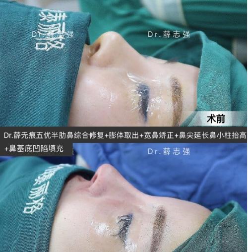 薛志强鼻修复案例