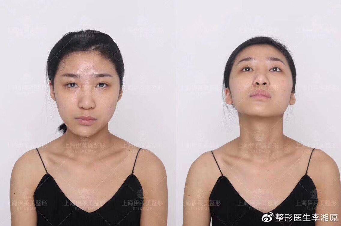李湘原磨骨案例