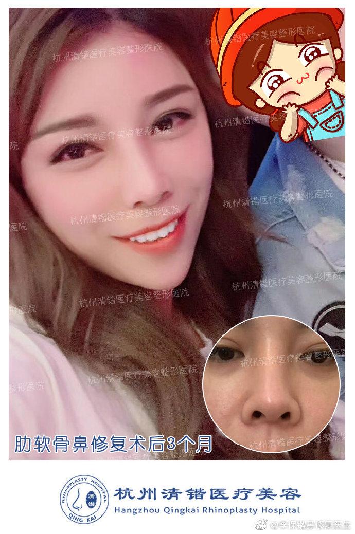 李保锴鼻修复案例