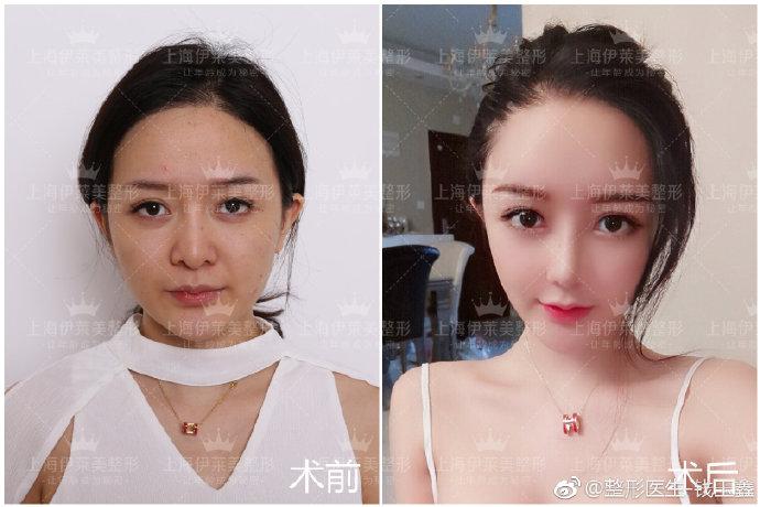 钱玉鑫鼻综合案例
