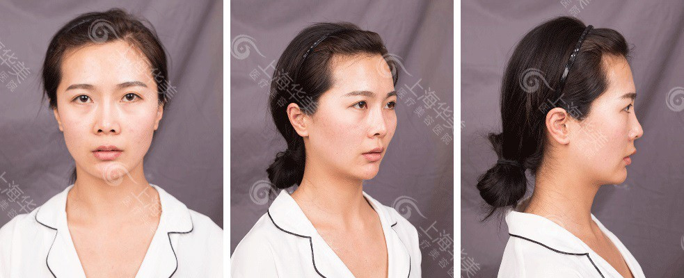 上海华美李健鼻综合案例