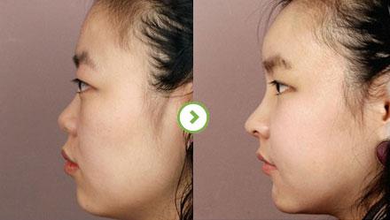 郑东学鼻整形案例
