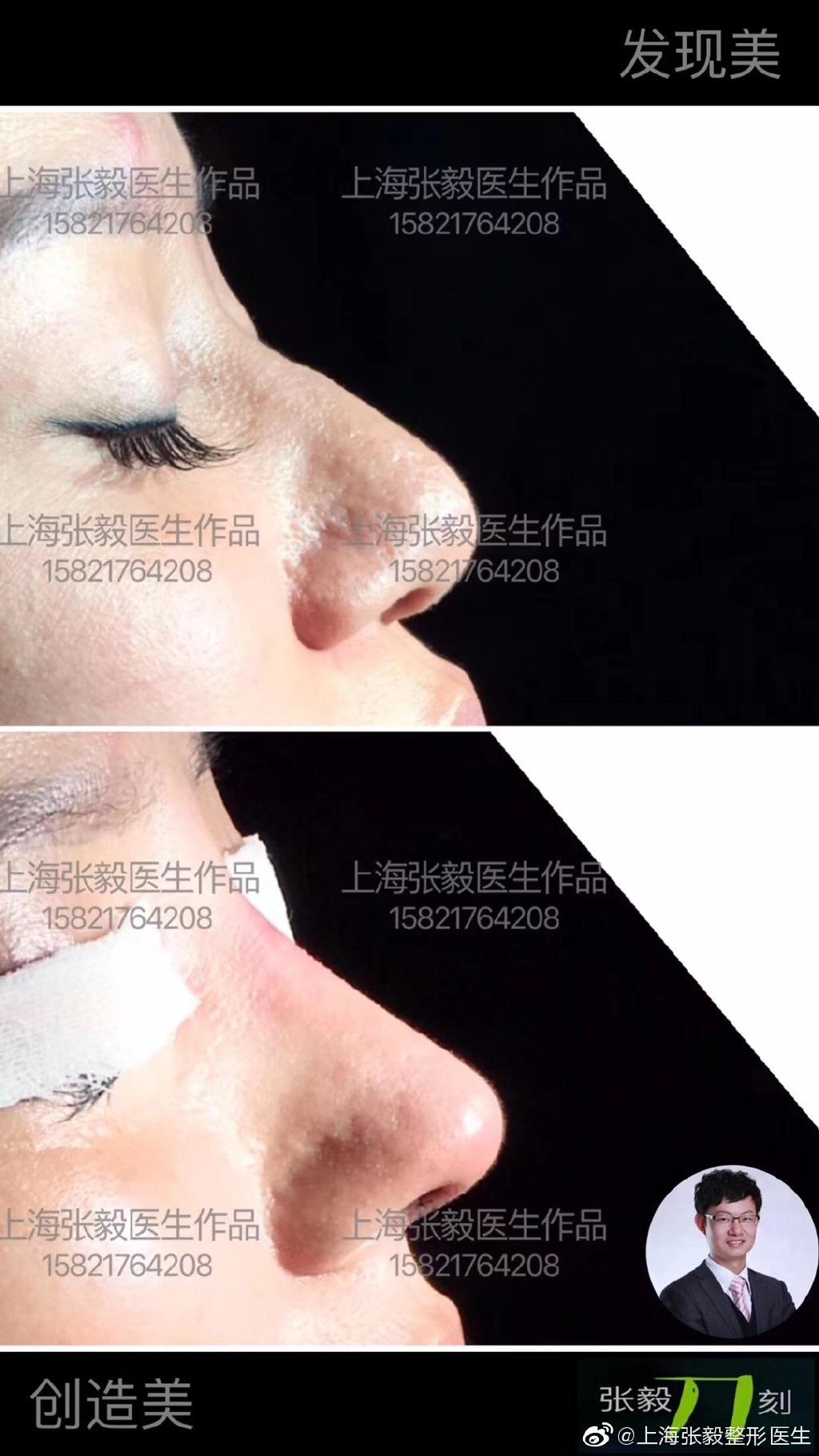 张毅隆鼻案例