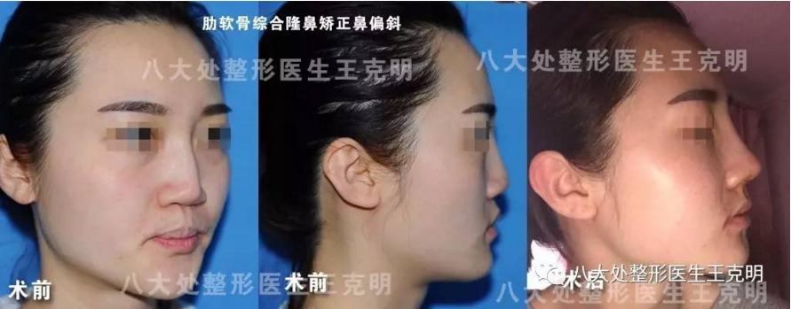 王克明隆鼻修复案例