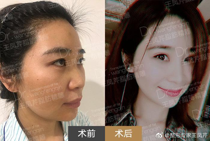 王凤芹面部填充案例