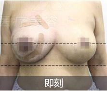 韩啸乳房下垂提升案例