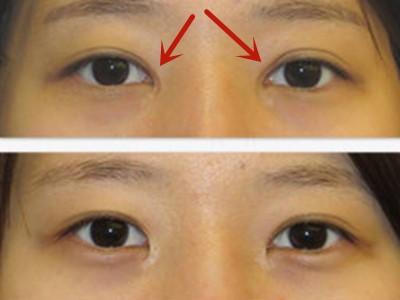 曹仁昌双眼皮修复案例