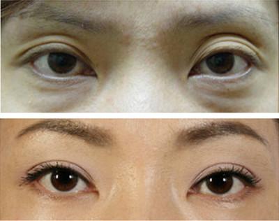 曹仁昌和洪星杓谁厉害,哪个做眼修复更好?