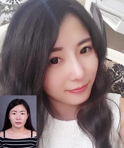 曹海峰隆鼻案例