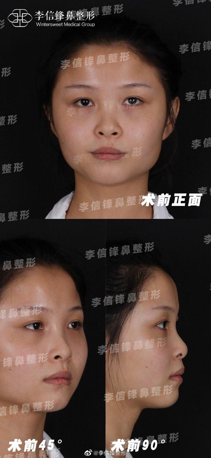 李信峰隆鼻案例