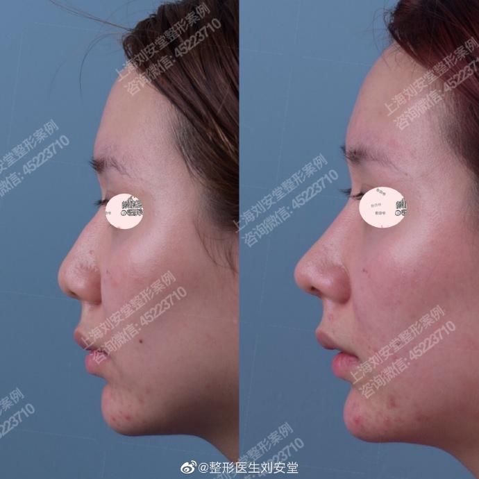 刘安堂鼻子案例