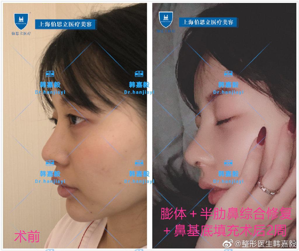 韩嘉毅鼻综合案例