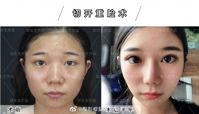 郑永生双眼皮修复案例
