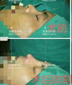 何晋龙鼻综合案例