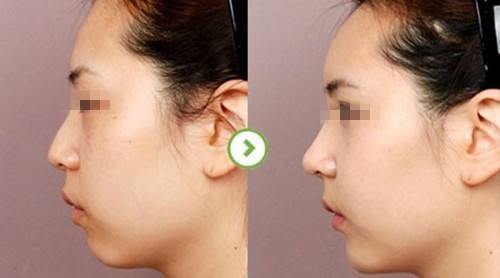 郑东学鼻修复案例