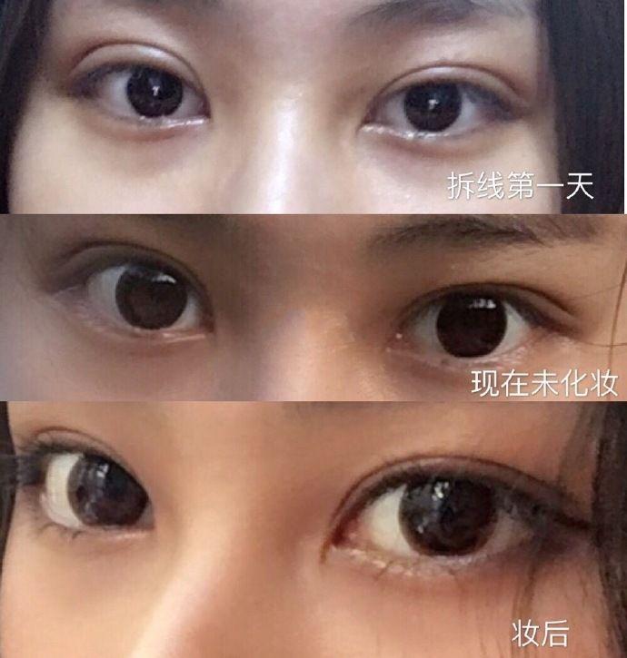 朱惠敏双眼皮修复案例