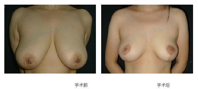 上海九院胸部提升哪位医生做的好?采用什么方式?