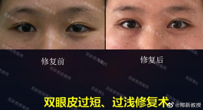 邢新双眼皮修复案例