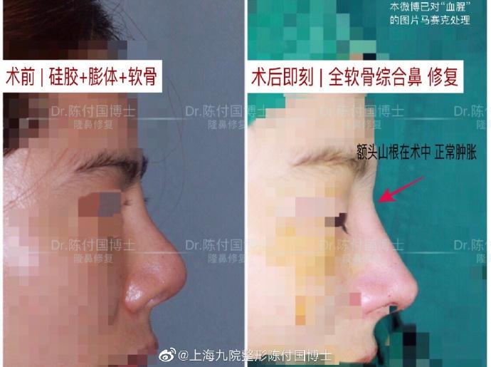陈付国鼻修复案例