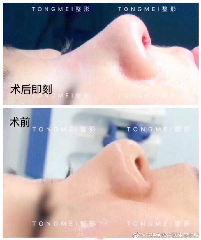 李长赋鼻综合案例