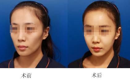 北京脂肪填充专家哪个最出名?