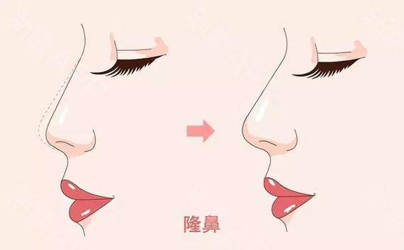 上海鼻综合最好的医生,上海鼻综合大概多少钱?