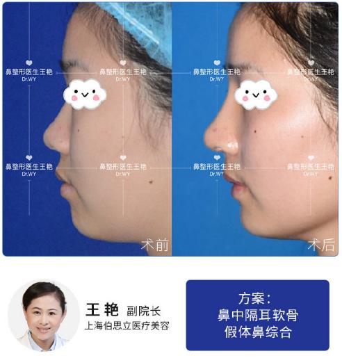 王艳鼻综合案例