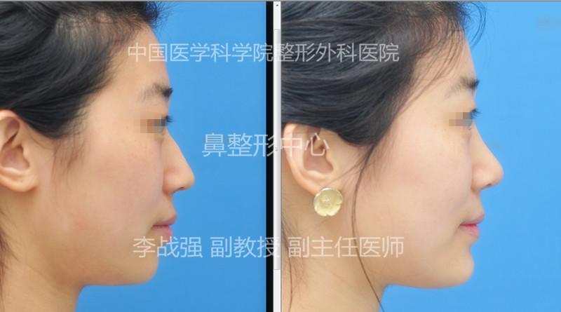 李战强鼻修复案例