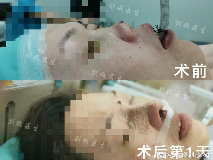 刘暾鼻修复案例