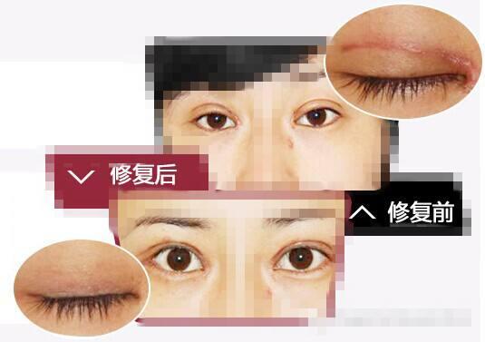 国内双眼皮修复资深专家有哪些?