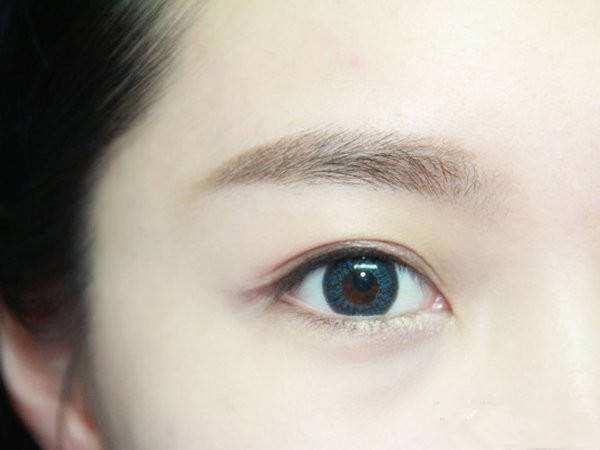 北京著名的双眼皮医生有哪些?