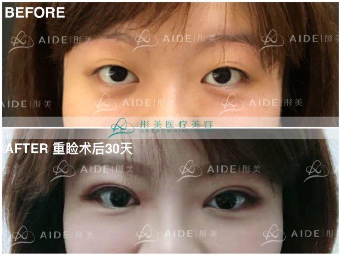 刘风卓双眼皮案例