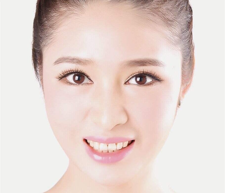 上海九院割双眼皮最好的专家是谁?