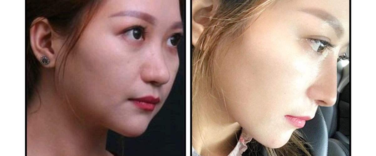 国内鼻修复专家排名和知名鼻修复专家风格评价